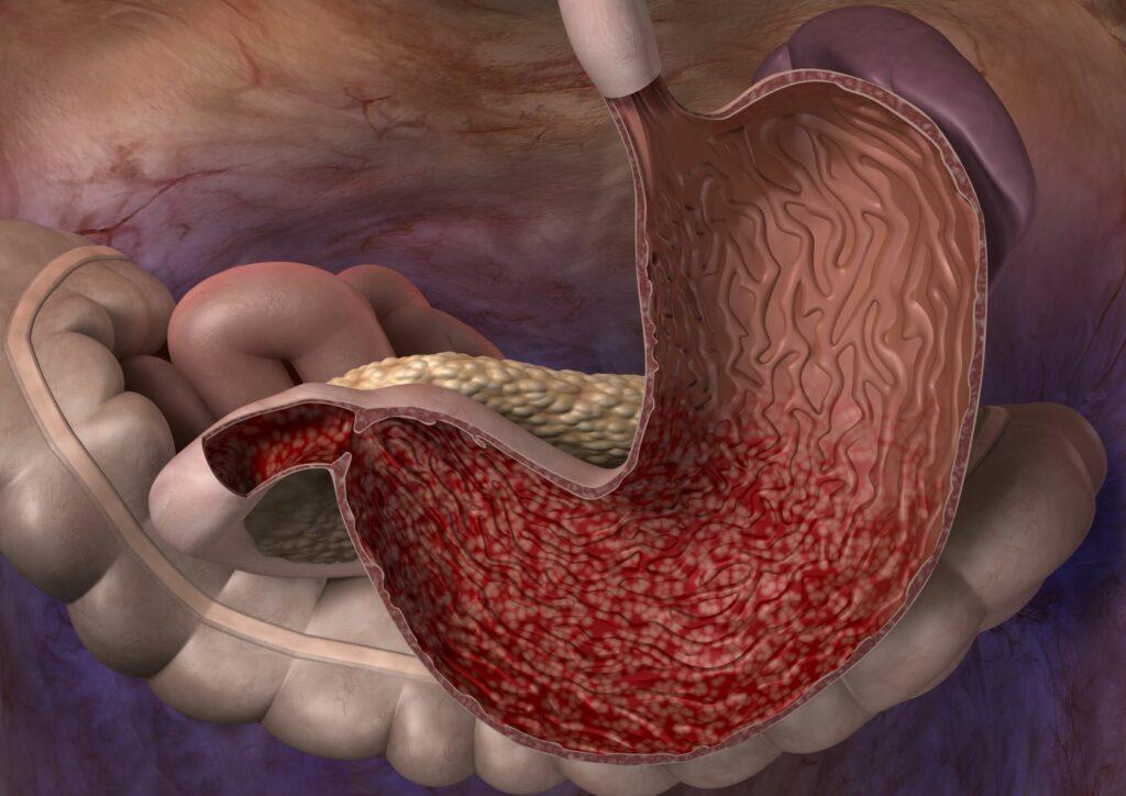 Desenho por computados que mostra a parede do estômago avermelhada. Este é um sintoma domum de gastrite nos cães